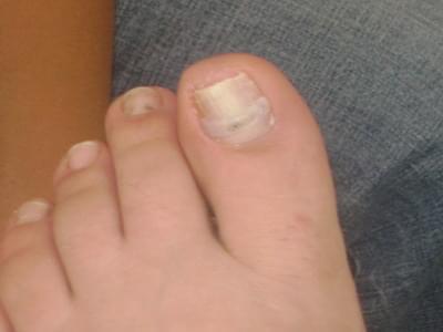 фото вросшие ногти