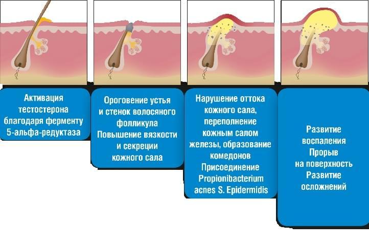 Фурункулы в паху у мужчин причины