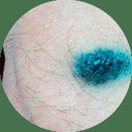 лечение синего невуса в Москве